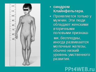 синдром Клайнфельтера. синдром Клайнфельтера. Проявляется только у мужчин. Эти л
