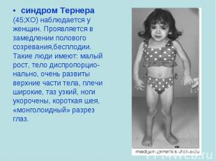 синдром Тернера синдром Тернера (45;ХО) наблюдается у женщин. Проявляется в заме