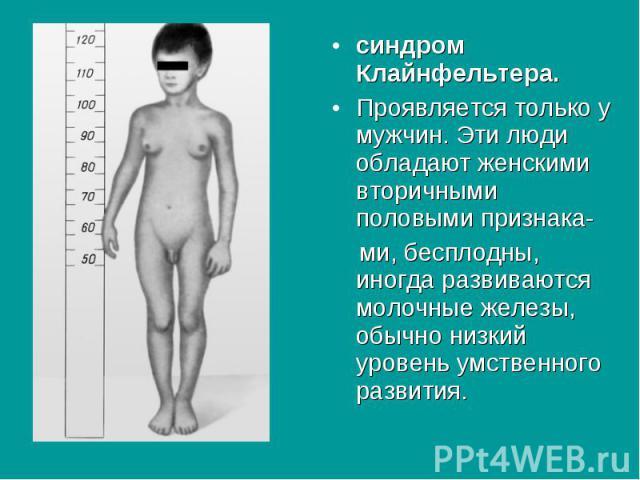синдром Клайнфельтера. синдром Клайнфельтера. Проявляется только у мужчин. Эти люди обладают женскими вторичными половыми признака- ми, бесплодны, иногда развиваются молочные железы, обычно низкий уровень умственного развития.