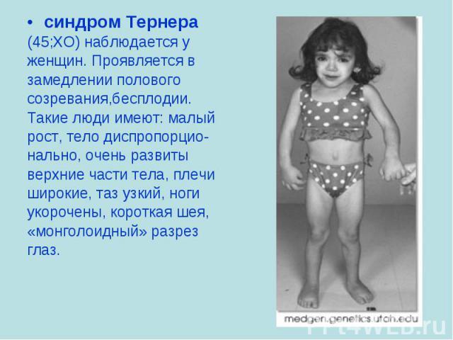 синдром Тернера синдром Тернера (45;ХО) наблюдается у женщин. Проявляется в замедлении полового созревания,бесплодии. Такие люди имеют: малый рост, тело диспропорцио- нально, очень развиты верхние части тела, плечи широкие, таз узкий, ноги укорочены…