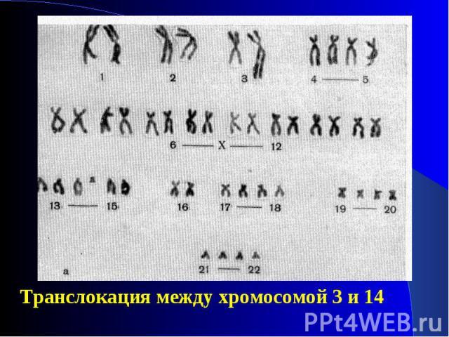 Транслокация между хромосомой 3 и 14 Транслокация между хромосомой 3 и 14