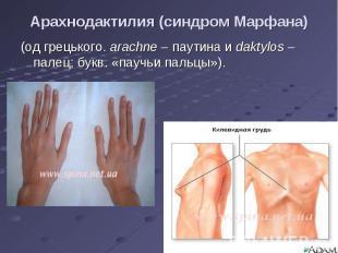 (од грецького. arachne – паутина и daktylos – палец; букв. «паучьи пальцы»). (од