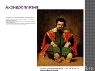 Ахондроплазия: Это можно увидеть на картине знаменитого художника Диего Веласкес