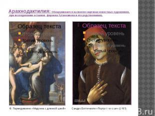 Арахнодактилия: Обнаруживается на многих картинах известных художников, при иссл