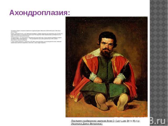 Ахондроплазия: Это можно увидеть на картине знаменитого художника Диего Веласкеса (1599-1660) «Дон Себастьяно дель Морра». Карлик, сидящий на полу— шут правителя Фландрии. У Морра нарушены все пропорции тела. Полностью отсутствуют пальцы. Он грустны…