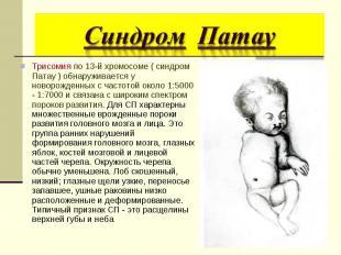 Трисомия по 13-й хромосоме ( синдром Патау ) обнаруживается у новорожденных с ча
