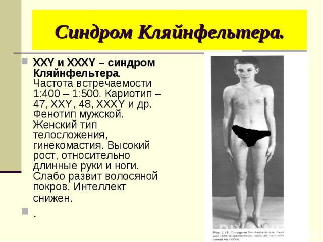ХХY и XXXY – синдром Кляйнфельтера. Частота встречаемости 1:400 – 1:500. Кариотип – 47, XXY, 48, XXXY и др. Фенотип мужской. Женский тип телосложения, гинекомастия. Высокий рост, относительно длинные руки и ноги. Слабо развит волосяной покров. Интел…