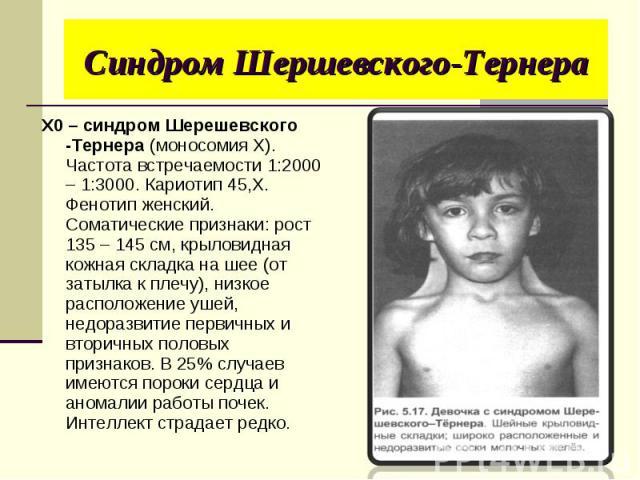 X0 – синдром Шерешевского -Тернера (моносомия Х). Частота встречаемости 1:2000 – 1:3000. Кариотип 45,Х. Фенотип женский. Соматические признаки: рост 135 – 145 см, крыловидная кожная складка на шее (от затылка к плечу), низкое расположение ушей, недо…