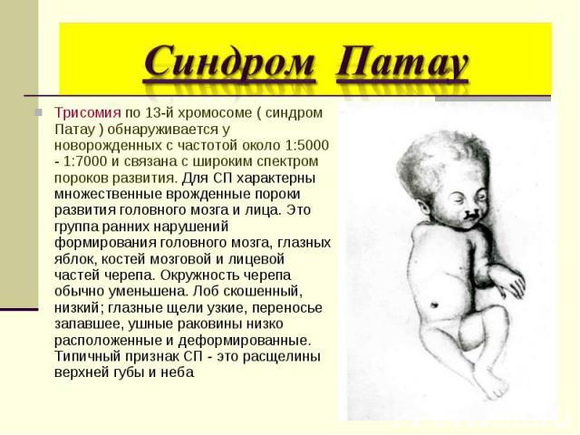 Трисомия по 13-й хромосоме ( синдром Патау ) обнаруживается у новорожденных с частотой около 1:5000 - 1:7000 и связана с широким спектром пороков развития. Для СП характерны множественные врожденные пороки развития головного мозга и лица. Это группа…