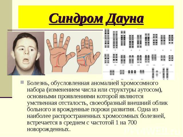 Болезнь, обусловленная аномалией хромосомного набора (изменением числа или структуры аутосом), основными проявлениями которой являются умственная отсталость, своеобразный внешний облик больного и врожденные пороки развития. Одна из наиболее распрост…