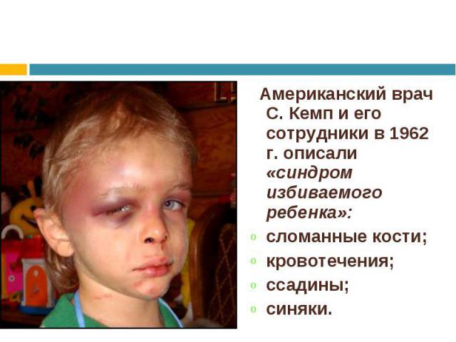 Американский врач С. Кемп и его сотрудники в 1962 г. описали «синдром избиваемого ребенка»: Американский врач С. Кемп и его сотрудники в 1962 г. описали «синдром избиваемого ребенка»: сломанные кости; кровотечения; ссадины; синяки.