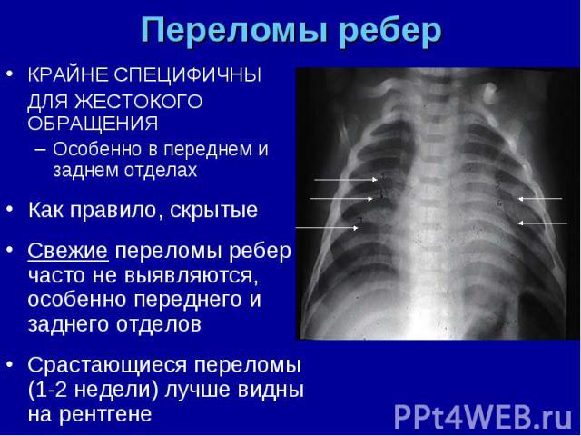 КРАЙНЕ СПЕЦИФИЧНЫ КРАЙНЕ СПЕЦИФИЧНЫ ДЛЯ ЖЕСТОКОГО ОБРАЩЕНИЯ Особенно в переднем и заднем отделах Как правило, скрытые Свежие переломы ребер часто не выявляются, особенно переднего и заднего отделов Срастающиеся переломы (1-2 недели) лучше видны на р…