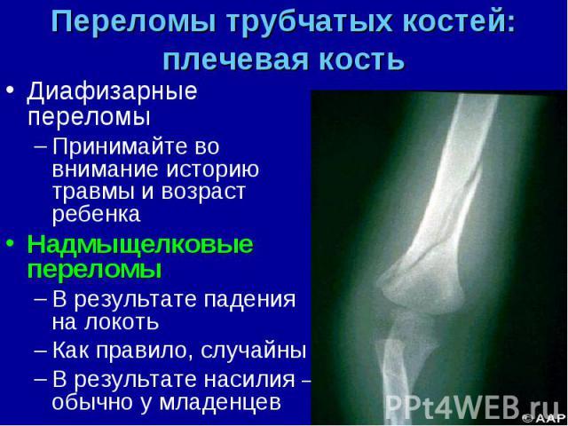 Диафизарные переломы Диафизарные переломы Принимайте во внимание историю травмы и возраст ребенка Надмыщелковые переломы В результате падения на локоть Как правило, случайны В результате насилия – обычно у младенцев