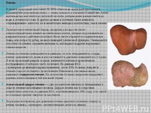 Печень Печень В печени происходит окисление 90–98%этанола до ацетальдегида