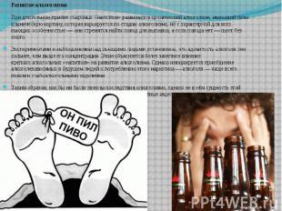 Развитие алкоголизма Развитие алкоголизма При длительном приёмеспиртных «н
