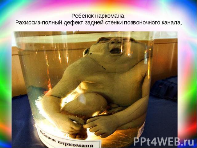 Ребенок наркомана. Рахиосиз-полный дефект задней стенки позвоночного канала, мягких тканей, кожи и мозговых оболочек