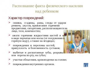 Распознание факта физического насилия над ребенком Характер повреждений: синяки,
