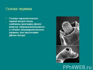 Голова червяка Головы паразитических червей могут быть снабжены крючками (фото в