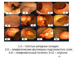 1-2 – толстые ригидные складки; 3-5 – лимфатические фолликулы подслизистого слоя
