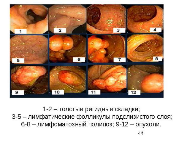 1-2 – толстые ригидные складки; 3-5 – лимфатические фолликулы подслизистого слоя; 6-8 – лимфоматозный полипоз; 9-12 – опухоли.