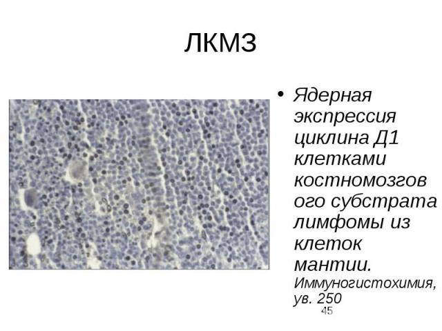 ЛКМЗ Ядерная экспрессия циклина Д1 клетками костномозгового субстрата лимфомы из клеток мантии. Иммуногистохимия, ув. 250