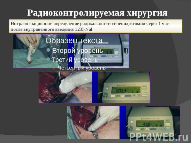 Радиоконтролируемая хирургия