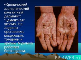 """Хронический аллергический контактный дерматит: """"цементная"""" экзема. На"""