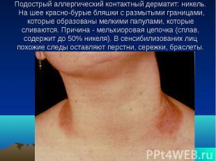 Подострый аллергический контактный дерматит: никель. На шее красно-бурые бляшки