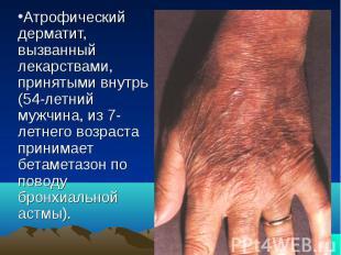 Атрофический дерматит, вызванный лекарствами, принятыми внутрь (54-летний мужчин