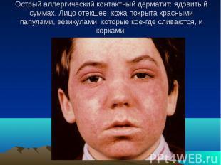 Острый аллергический контактный дерматит: ядовитый суммах. Лицо отекшее, кожа по