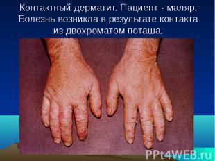 Контактный дерматит. Пациент - маляр. Болезнь возникла в результате контакта из