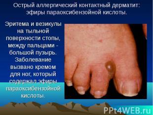 Острый аллергический контактный дерматит: эфиры параоксибензойной кислоты. Эрите