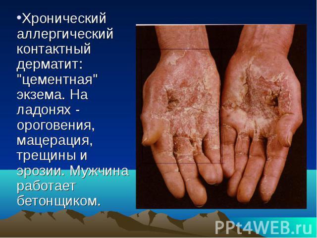 """Хронический аллергический контактный дерматит: """"цементная"""" экзема. На ладонях - ороговения, мацерация, трещины и эрозии. Мужчина работает бетонщиком."""