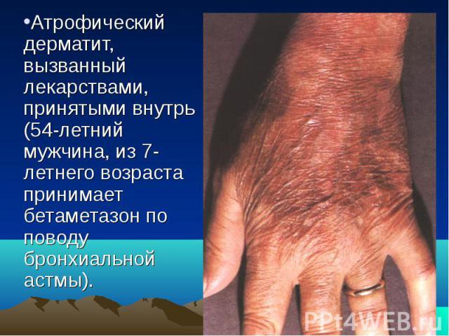 Атрофический дерматит, вызванный лекарствами, принятыми внутрь (54-летний мужчина, из 7-летнего возраста принимает бетаметазон по поводу бронхиальной астмы).