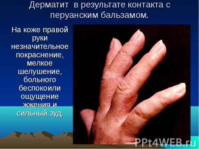 Дерматит в результате контакта с перуанским бальзамом. На коже правой руки незначительное покраснение, мелкое шелушение, больного беспокоили ощущение жжения и сильный зуд.