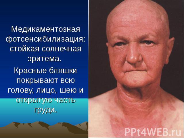 Медикаментозная фотсенсибилизация: стойкая солнечная эритема. Красные бляшки покрывают всю голову, лицо, шею и открытую часть груди.