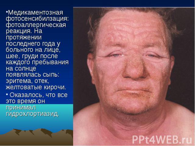 Медикаментозная фотосенсибилзация: фотоаллергическая реакция. На протяжении последнего года у больного на лице, шее, груди после каждого пребывания на солнце появлялась сыпь: эритема, отек, желтоватые кирочи. Оказалось, что все это время он принимал…