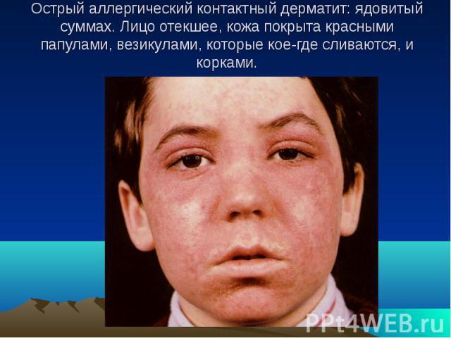 Острый аллергический контактный дерматит: ядовитый суммах. Лицо отекшее, кожа покрыта красными папулами, везикулами, которые кое-где сливаются, и корками.