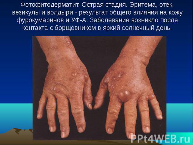 Фотофитодерматит. Острая стадия. Эритема, отек, везикулы и волдыри - результат общего влияния на кожу фурокумаринов и УФ-А. Заболевание возникло после контакта с борщовником в яркий солнечный день.