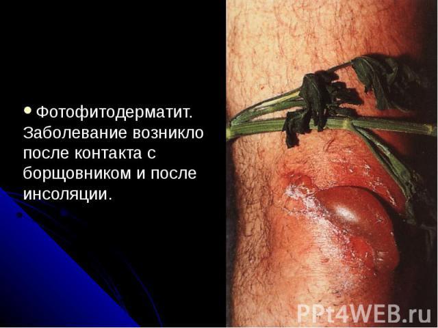 Фотофитодерматит. Заболевание возникло после контакта с борщовником и после инсоляции.