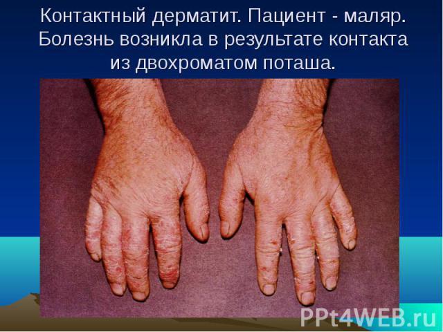 Контактный дерматит. Пациент - маляр. Болезнь возникла в результате контакта из двохроматом поташа.