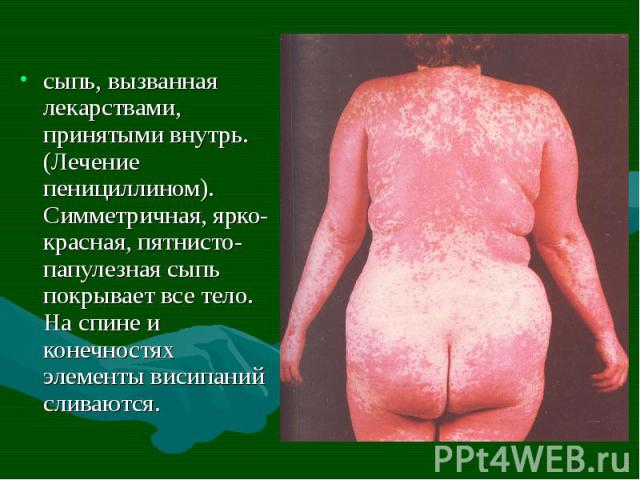 сыпь, вызванная лекарствами, принятыми внутрь. (Лечение пенициллином). Симметричная, ярко-красная, пятнисто-папулезная сыпь покрывает все тело. На спине и конечностях элементы висипаний сливаются. сыпь, вызванная лекарствами, принятыми внутрь. (Лече…