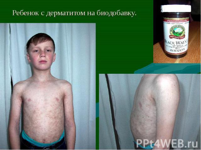 Ребенок с дерматитом на биодобавку.