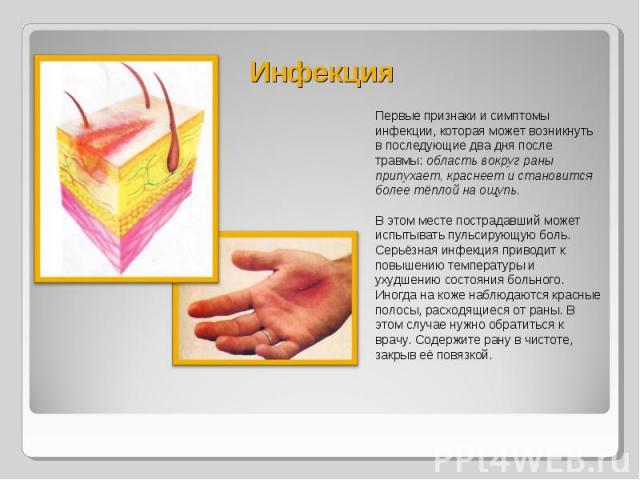 Первые признаки и симптомы инфекции, которая может возникнуть в последующие два дня после травмы: область вокруг раны припухает, краснеет и становится более тёплой на ощупь. Первые признаки и симптомы инфекции, которая может возникнуть в последующие…