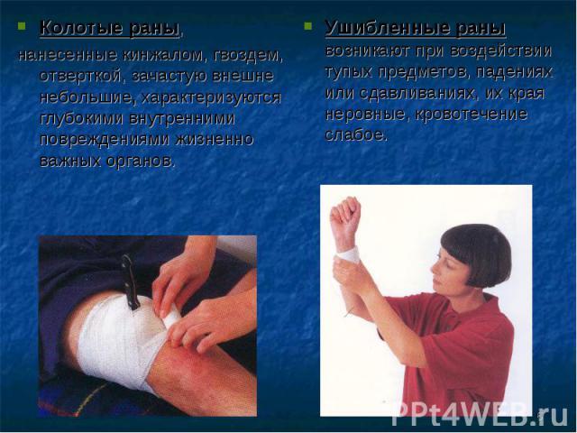 Колотые раны, Колотые раны, нанесенные кинжалом, гвоздем, отверткой, зачастую внешне небольшие, характеризуются глубокими внутренними повреждениями жизненно важных органов.