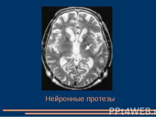 Нейронные протезы