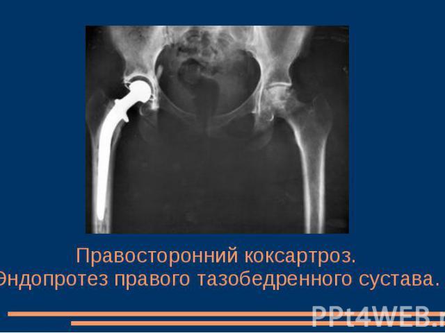 Правосторонний коксартроз. Эндопротез правого тазобедренного сустава.