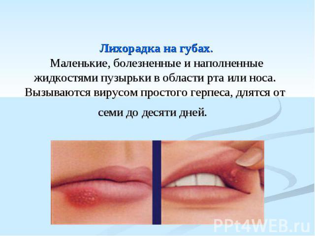 Лихорадка на губах. Маленькие, болезненные и наполненные жидкостями пузырьки в области рта или носа. Вызываются вирусом простого герпеса, длятся от семи до десяти дней.
