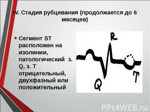Сегмент ST расположен на изолинии, патологический з. Q, з. Т отрицательный, двух