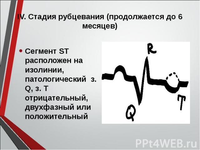 Сегмент ST расположен на изолинии, патологический з. Q, з. Т отрицательный, двухфазный или положительный Сегмент ST расположен на изолинии, патологический з. Q, з. Т отрицательный, двухфазный или положительный